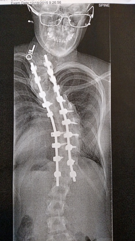 "My daughter's x-ray, which was ""full of personality"", according to our nurse."