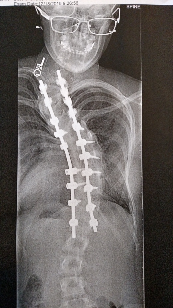 """My daughter's x-ray, which was """"full of personality"""", according to our nurse."""